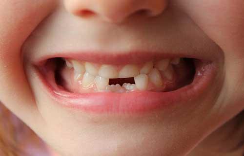 انواع عصب کشی دندان