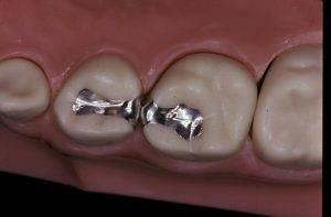 پرکردن دندان کودکان