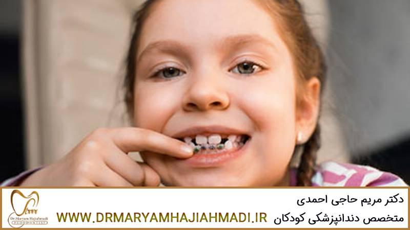 رفع مشکلات دندان کودکان با ارتودنسی