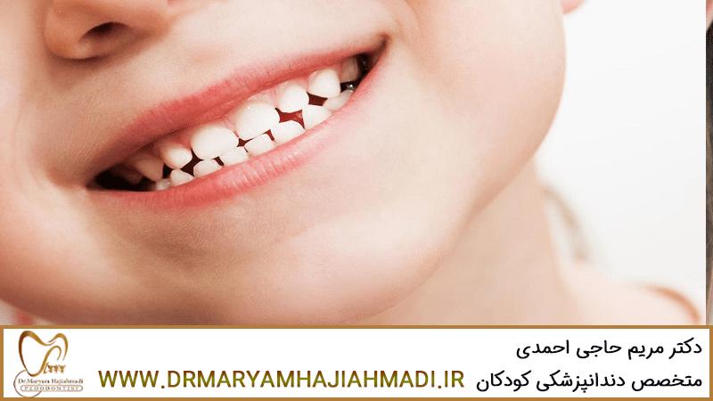 توصیه هایی درمورد دندان شیری کودکان