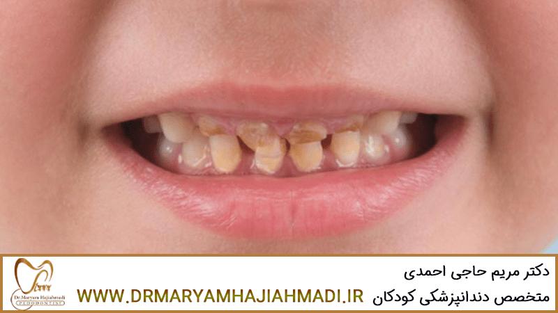 عوامل پوسیدگی دندان کودکان