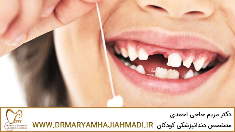 نگهداری از دندانهای شیری