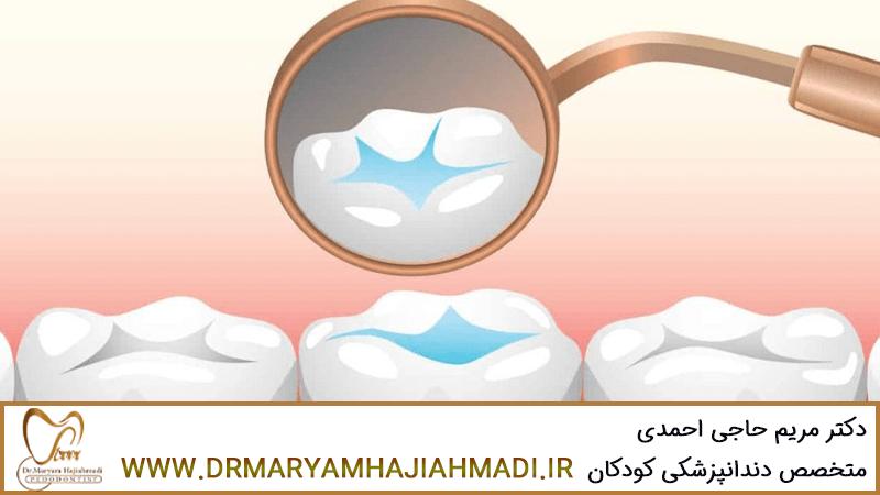 همه چیز در مورد فیشور سیلانت دندان