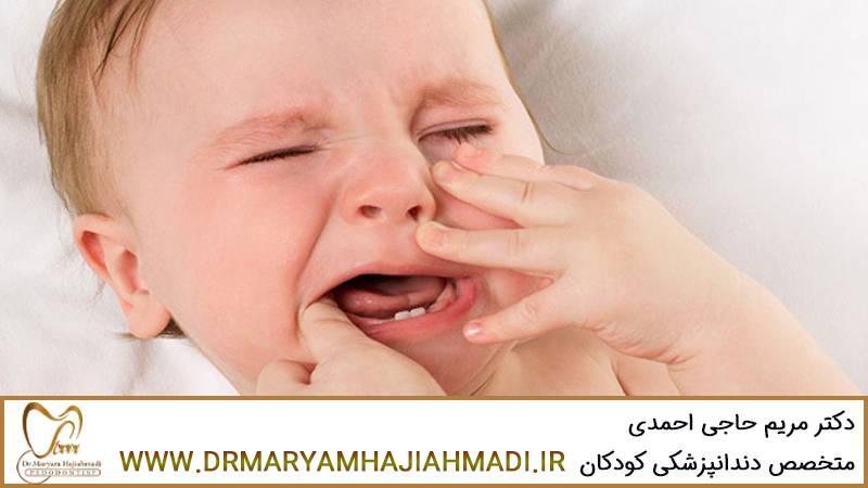 ژل تسکین درد دندان نوزاد
