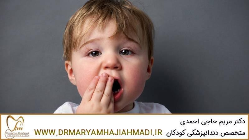 دندان ضرب دیده کودک و پیشگیری از حادثه