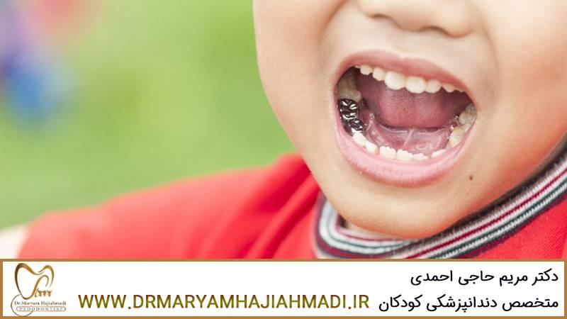 روکش دندان شیری کودک