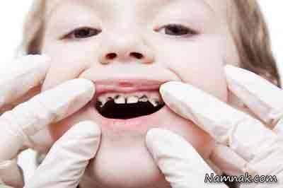 درمان پوسیدگی دندان در کودکان