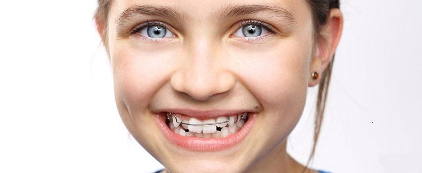 ارتودنسی دندان در کودکان