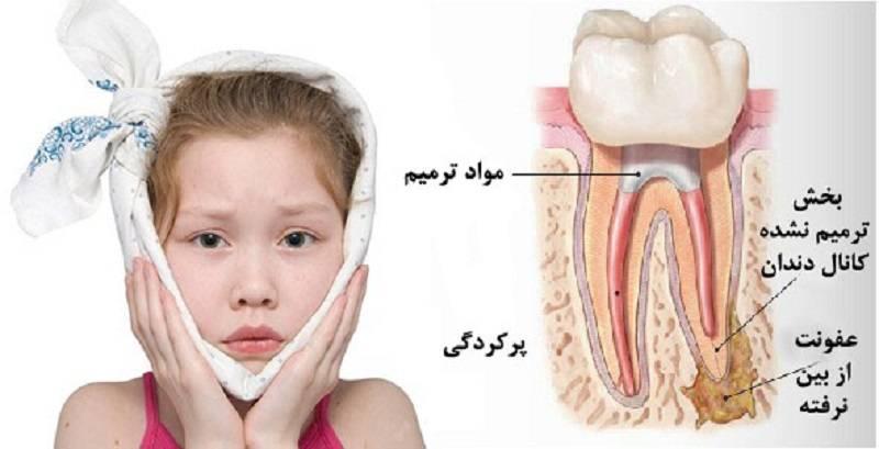 انواع درد دندان