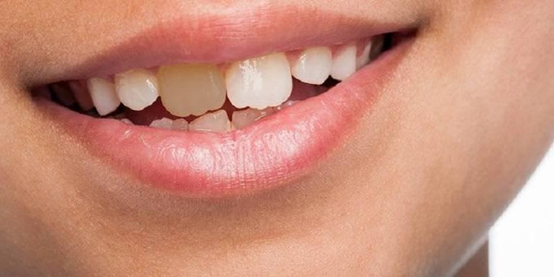 دندان های لک شده