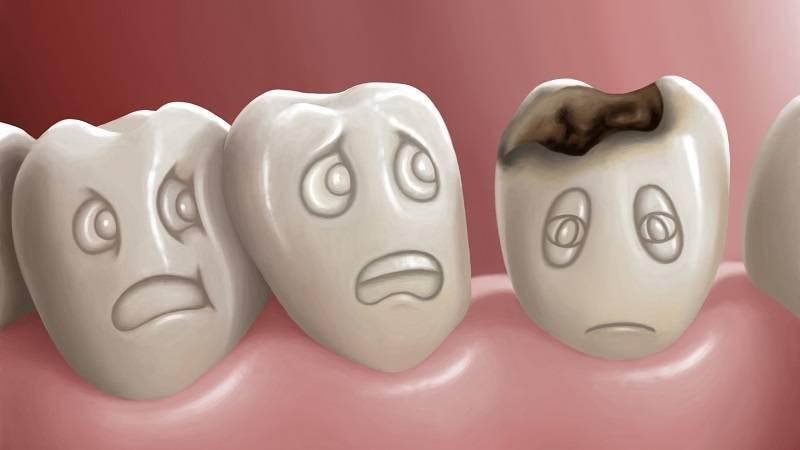 پوسیدگی زودرس دندان