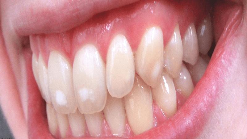بیماری فلوروز دندان ها