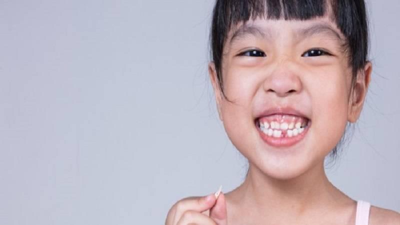 اهمیت درمان دندان های شیری
