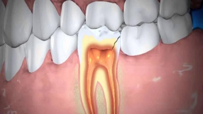 چرا آبسه دندان رخ می دهد ؟