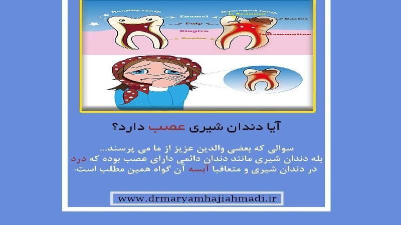 آیا دندان شیری عصب دارد ؟