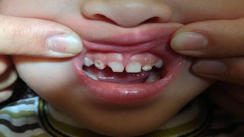 آشنایی با درمان های خانگی درد آبسه دندان