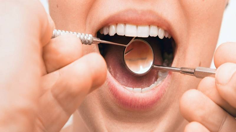 تشخیص آبسه دندان