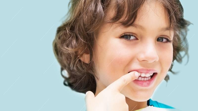 درمان فیشور سیلانت برای کودکان