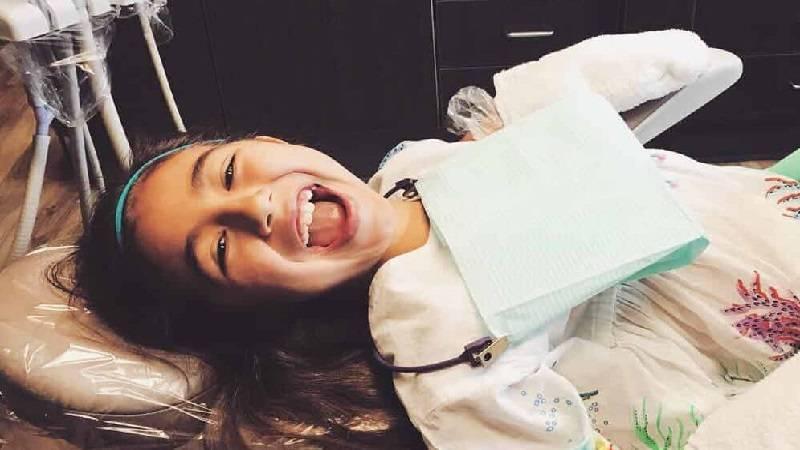 فیشورسیلانت برای دندان کودکان