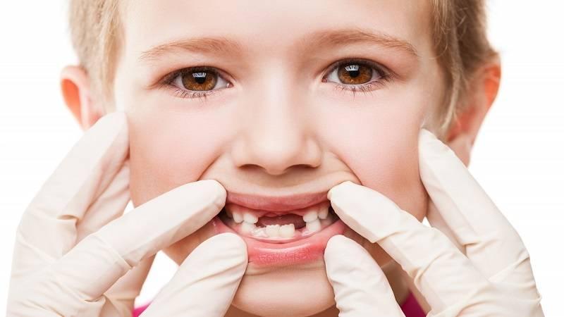 قبل از عصب کشی دندان در کودکان