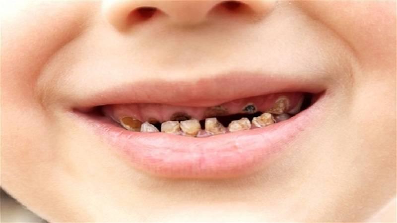 پوسیدگی سطحی دندان شیری
