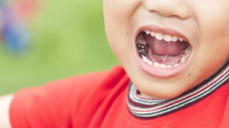 آیا دندان شیری کودکان نیاز به عصب کشی دارد؟