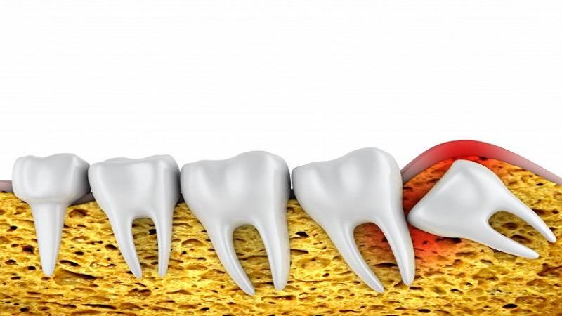 دندان عقل را بی دلیل نکشید