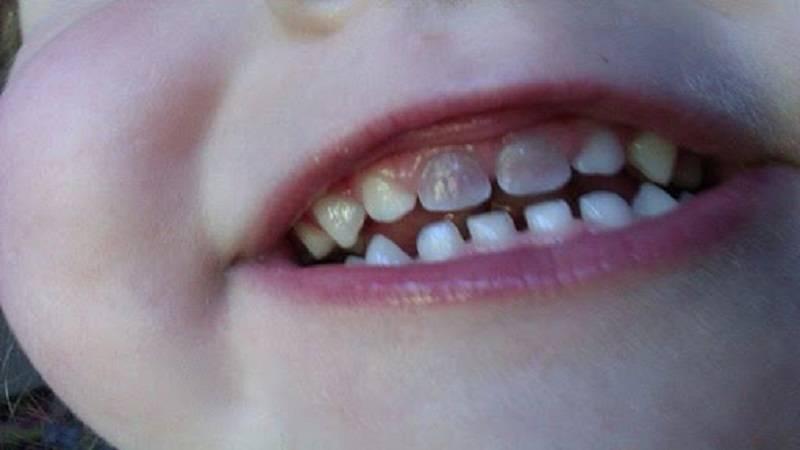 جلوگیری از سیاه شدن دندان با قطره آهن