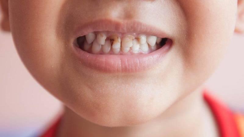 راه درمان پوسیدگی دندان کودکان
