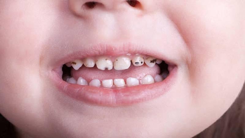 پوسيدگى زود هنگام دندان در كودكان