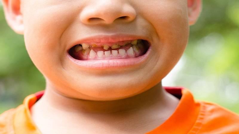 دندانپزشک کودکان اصفهان   پوسیدگی دندان رایجترین دلیل تشکیل عفونت و آبسه