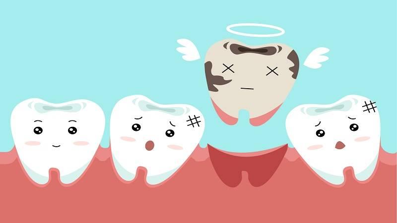 دندانپزشک کودکان اصفهان   کشیدن دندان آبسه و عفونت کرده