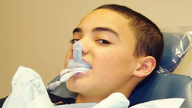 دندانپزشک کودکان اصفهان   روش انجام فلوراید درمانی