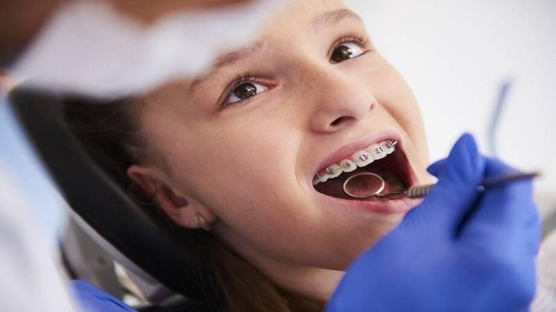 دندانپزشک کودکان اصفهان  پوسیدگی دندان در ارتودنسی را جدی بگیرید.