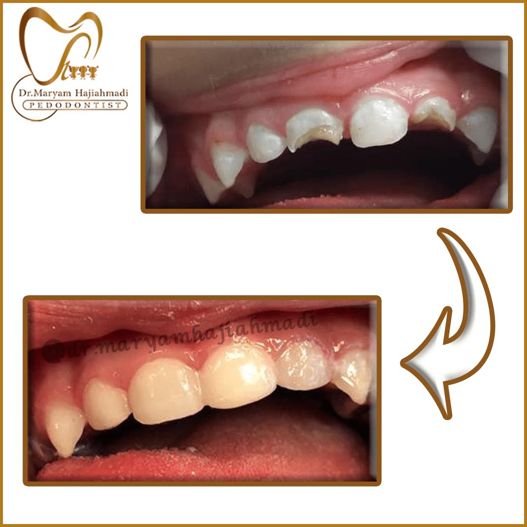 ترمیم زیبایی دندان شیری تحت بیهوشی