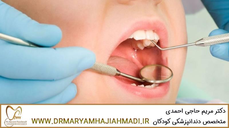 مراقبت از روکش دندان های شیری کودک