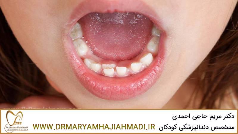 رویش دندان دائمی قبل از افتادن دندان شیری