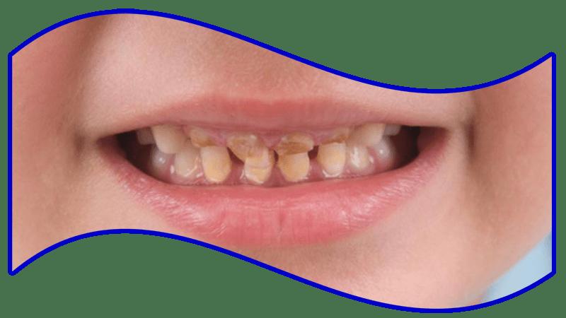 درمان پوسیدگی دندان کودکان