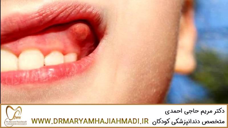 علائم و نشانه های عفونت دندانی چیست؟