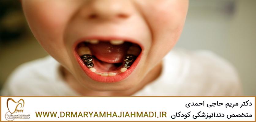 بهترین متخصص دندانپزشکی کودکان در اصفهان