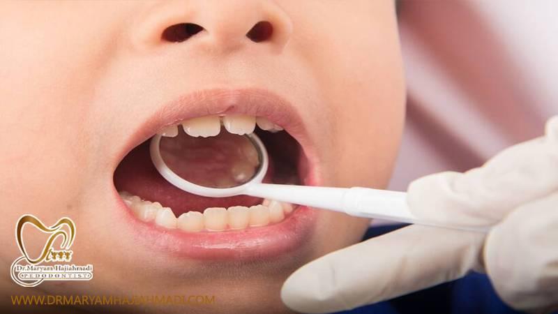 درمان دندانپزشکی کودکان تحت آرامبخشی و بیهوشی