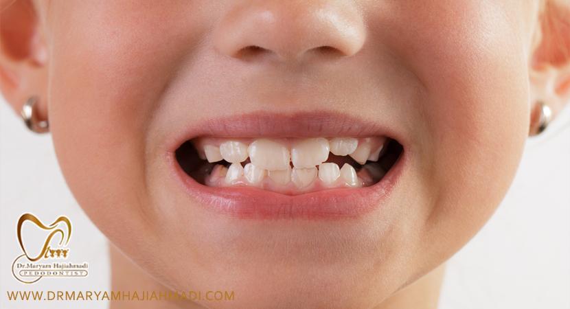 دندانپزشکی کودکان تحت بیهوشی اصفهان