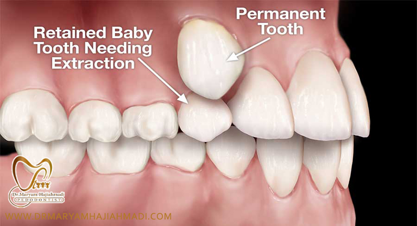 بهترین متخصص دندانپزشکی کودکان