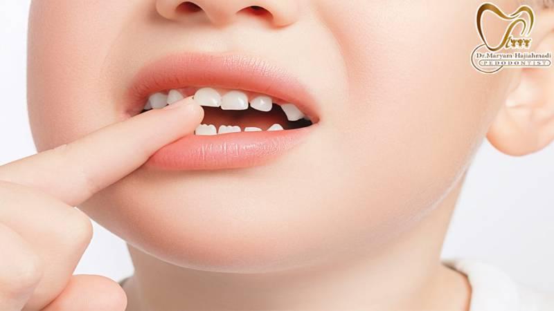 لق شدن دندان نوزاد