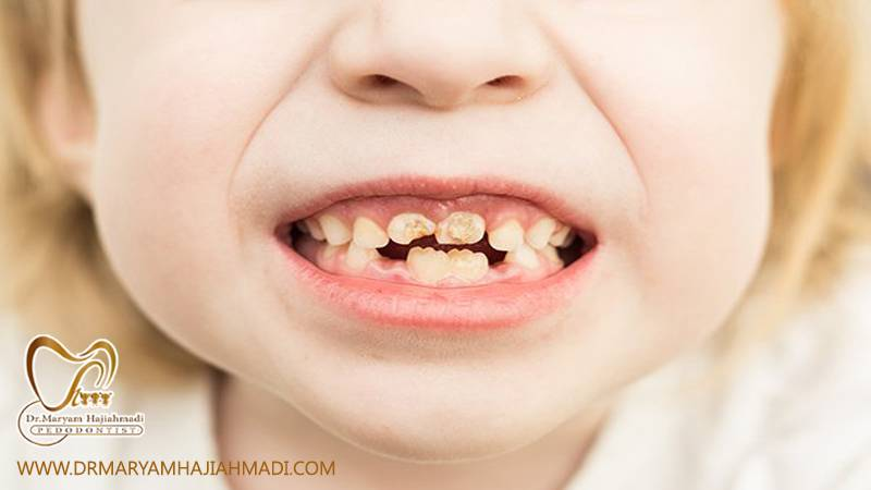 عصب کشی دندان در کودکان
