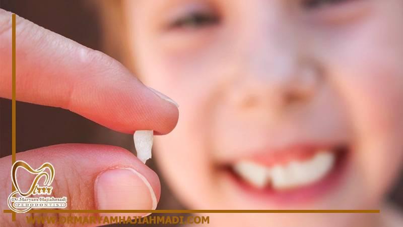 شل شدن دندان کودک