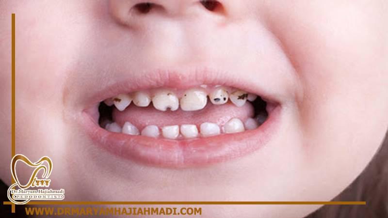 روکش دندان در کودکان